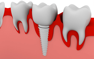Dental Implants With International Warranty adyar chennai