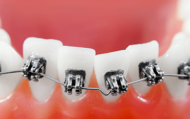Dental Care in Chennai